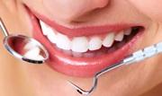 Альтернатива имплантации зубов есть ли