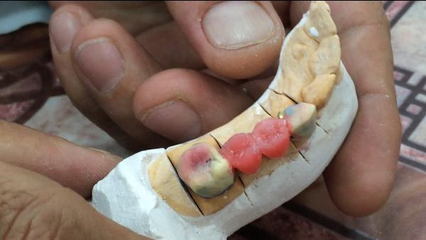 Изготовление паяных мостовидных протезов плюсы и минусы
