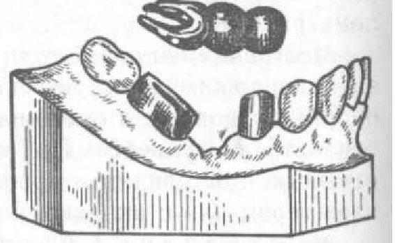 Составные части бюгельного протеза